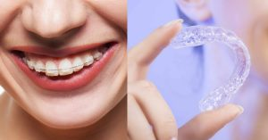 Invisalign In Dallas, TX